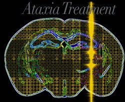 Ataxia treatment bangkok Stem Cell Therapy for Ataxia | Cerebellar Ataxia Treatment in Bangkok