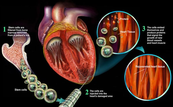 Stem Cell Therapy CHF Stem Cell Treatment Congestive Heart Failure | CHF Stem Cell Therapy