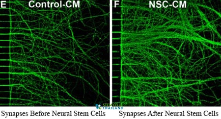 before-after-neural-stem-cell-transplants