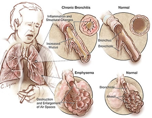 copd stem cell treatment Stem Cell Treatment for COPD | Chronic Obstructive Pulmonary Disease