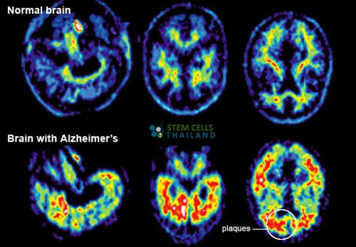 normal brain vs alzheimers patient
