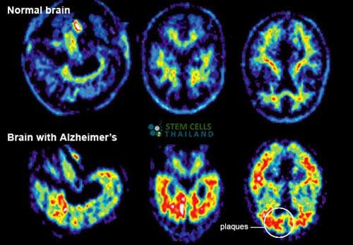 normal brain vs alzheimers patient