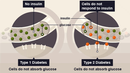 types-of-diabetes-type1-vs-type2
