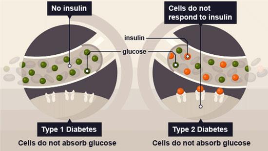 Type 2 diabetes reversible reaction