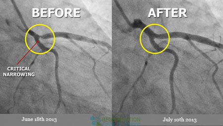 before-after-stemcell-heart-disease-treatment