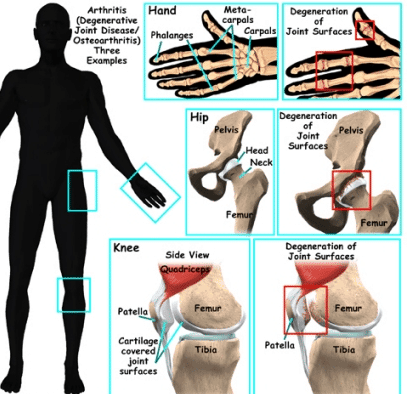 stem-cell-therapy-for-arthritis