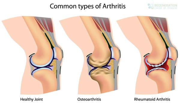 types-of-Arthritis-treated-stem-cells