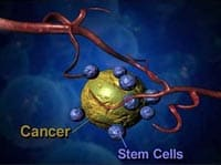 stem-cell-cancer-therapy-before-after-thailand