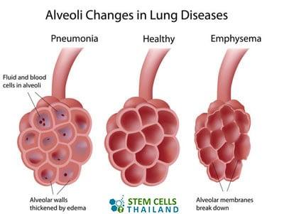 alvioli-regeneration-stem-cells-emphysema-regen
