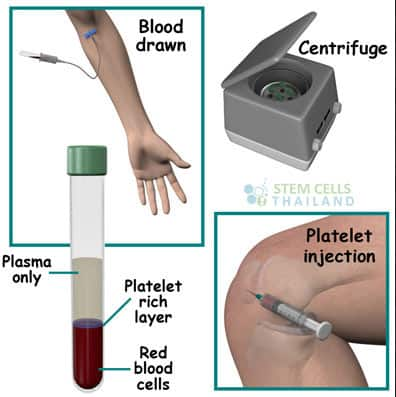 Prp Enriched Plasma Rich Injection Therapy