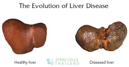 Liver Disease Stages