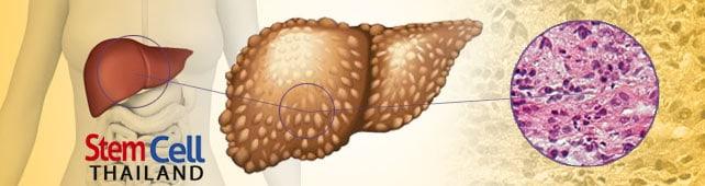 quarter in esophagus