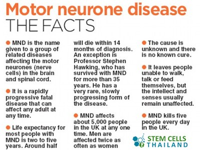 Stem Cells To Treat Motor Neuron Disease Mnd Therapy
