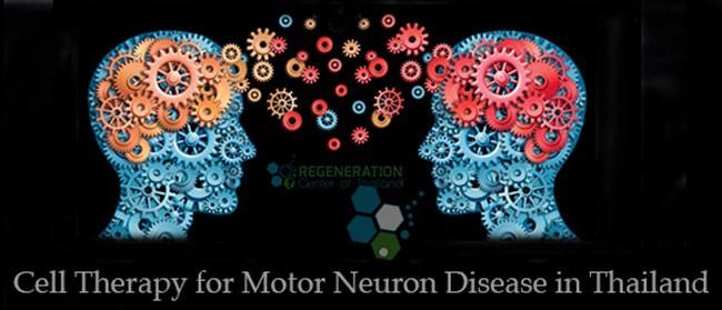 Stem Cell Treatment For Motor Neuron Disease