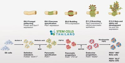 islet-cell-transplant-protocol-thailand