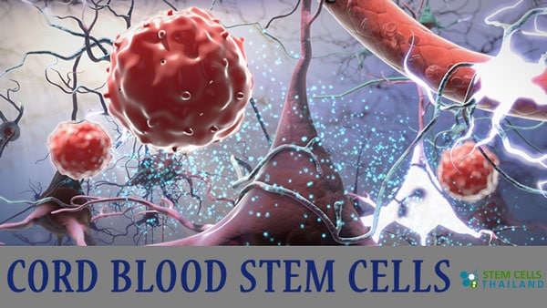 cord blood derived stemc cell therapy ucb cellscord blood derived stemc cell therapy ucb cells