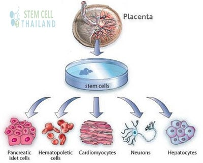 uses-for-placenta-derived-stem-cells