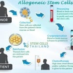 Allogeneic Stem Cells