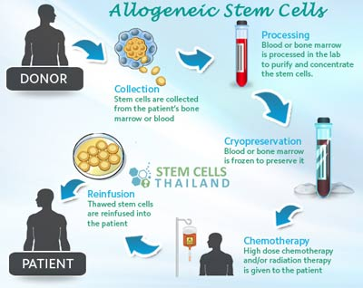 Allogenic Stem Cell Transplants