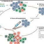 Autologous Stem Cells