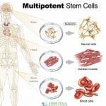 Multipotent stem cells