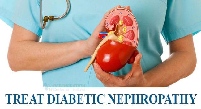 Cure-Diabetic-Nephropathy-Stem-Cells