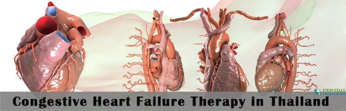 Stem Cell Treatment Congestive Heart Failure | CHF Stem Cell Therapy
