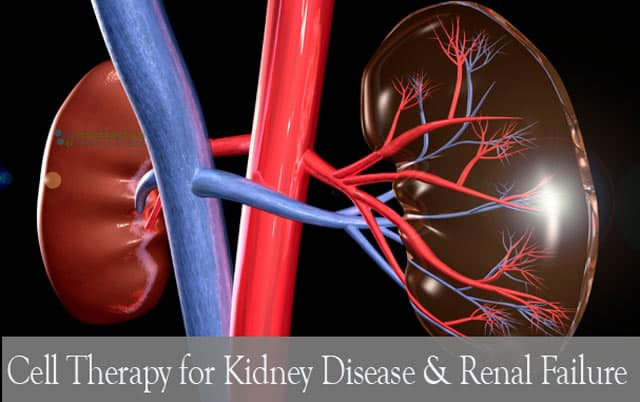 Nephron Cells To Reverse Kidney Disease & Renal Failure