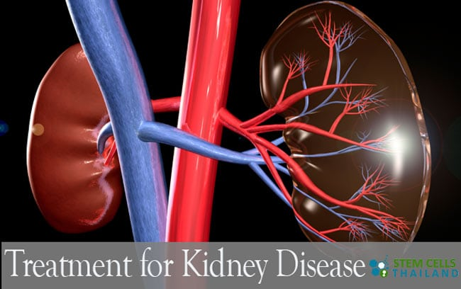 Stem Cell Treatment for Kidney Disease | Chronic Renal Failure Therapy