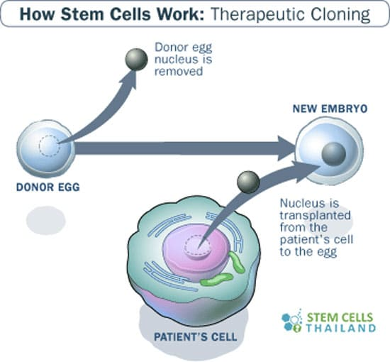 Benefits Of Therapeutic Cloning In Stem Cell Science