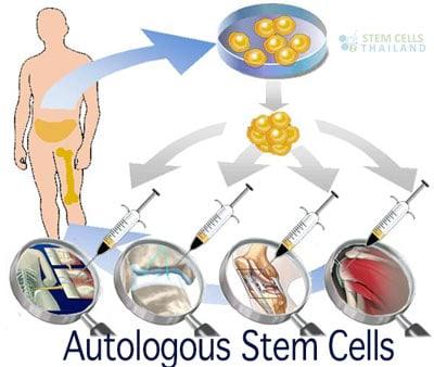 autologous-bone-marrow-illiac-crest-extractions