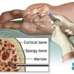 Iliac Crest Bone Marrow Aspiration and Grafting Site