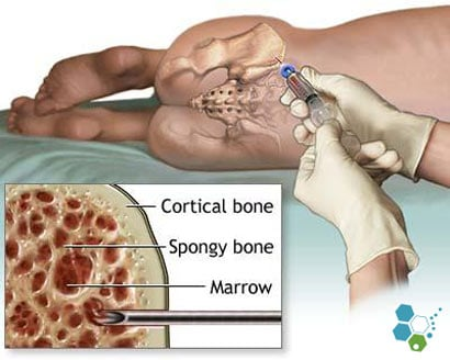 iliac-crest-bone-marrow-stem-cells