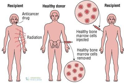 Hematopoietic-cell-transplants