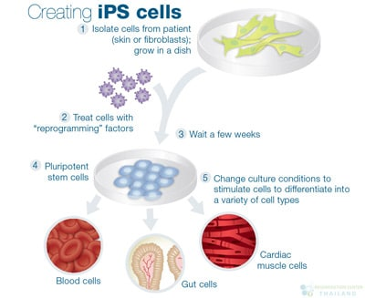 ips-pluripotent-cells
