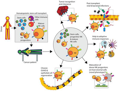 NK-cell-therapy