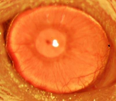 regrown-cornea-stemcells