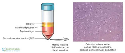 Stromal-Vascular-Fraction-SVF-Cells-therapy