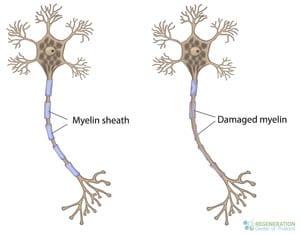 reparing-myelin-sheath-damage-thailand