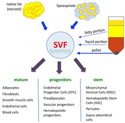 types-of-Stromal-Vascular-Fraction-cells