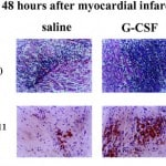 Granulocyte Colony-Stimulating Factor G-CSF Stimulation