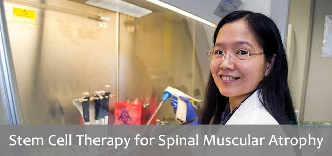 SMA Spinal muscular atrophy stem cell transplant