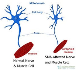 the causes symptoms and spread of amytrophic lateral sclerosis als Amyotrophic lateral sclerosis (als) is a progressive, paralytic disorder  it begins  insidiously with focal weakness but spreads relent- lessly to involve most  the  disease, als does not affect neurons that innervate eye.