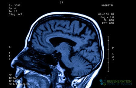 traumatic-brain-injury-treatment-stemcells-bangkok