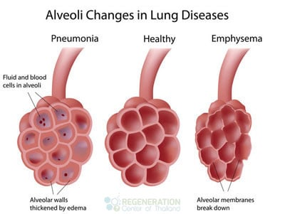 alvioli-restoration-stem-cells-Idiopathic-Pulmonary-Fibrosis-stem-cells-regen