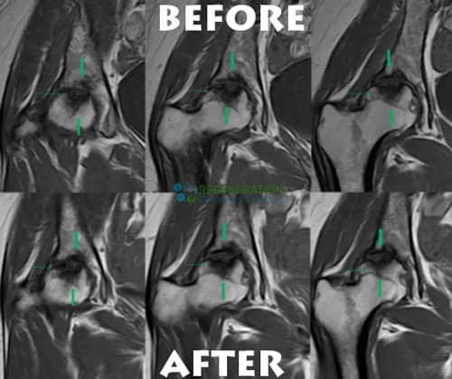 before-after-stemcell-hip