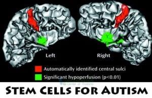 stem-cell-autism-treatments-thailand