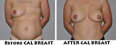 stemcell-breast-reconstruction-thailand