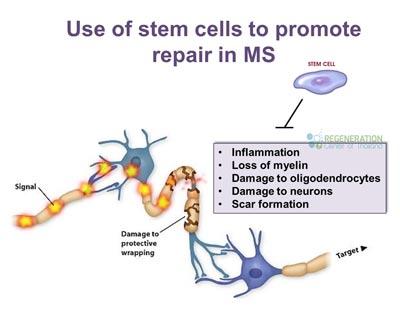 stem-cells-repair-multiple-sclerosis
