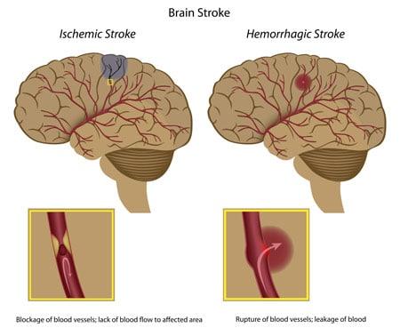 ischemic-stroke-vs-hemorrhagic-stroke